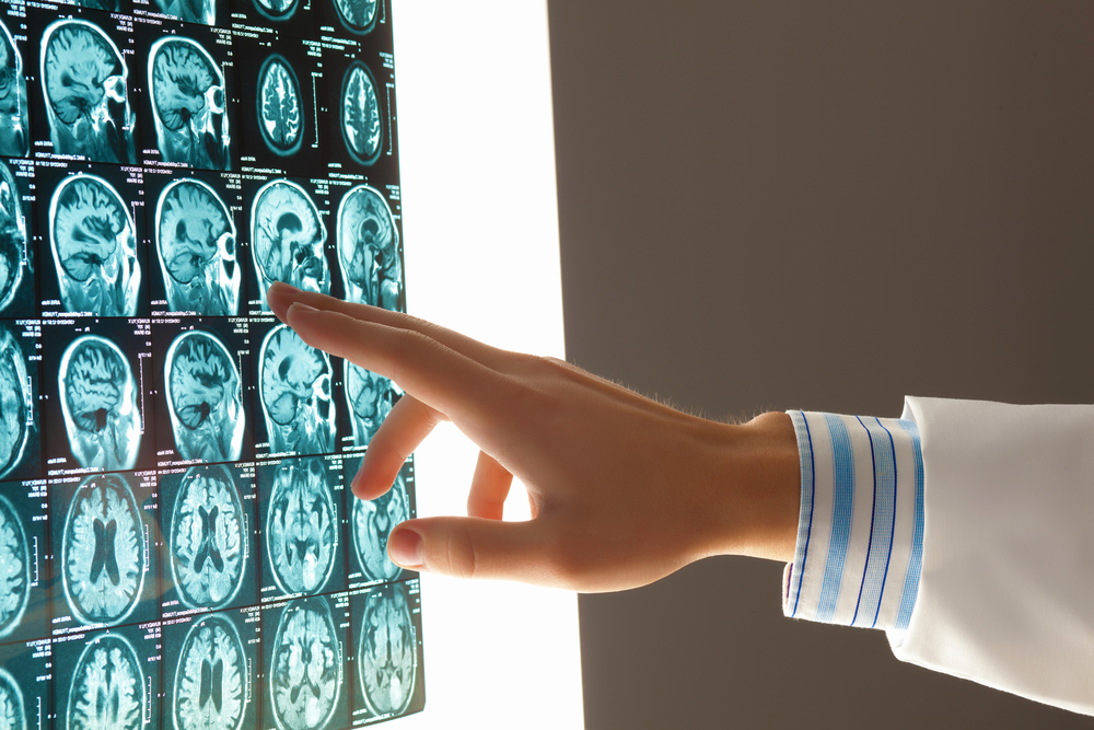 Close-up image of doctors hand pointing at x-ray results
